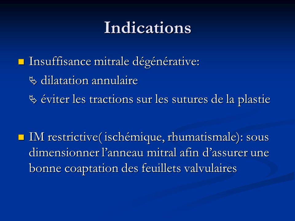 Indications Insuffisance mitrale dégénérative:  dilatation annulaire