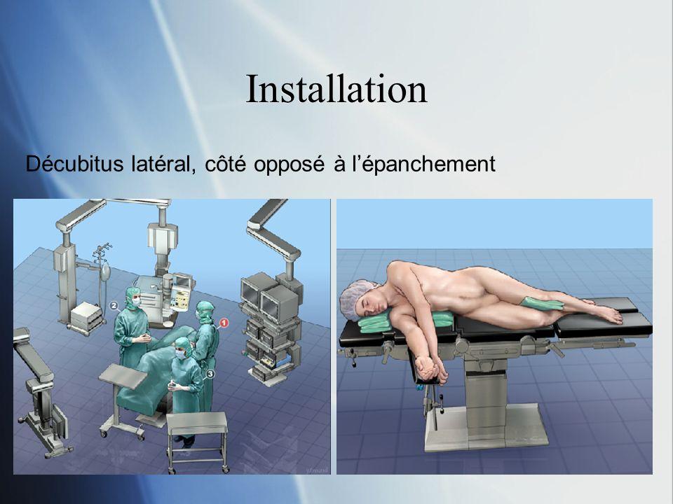 Installation Décubitus latéral, côté opposé à l'épanchement