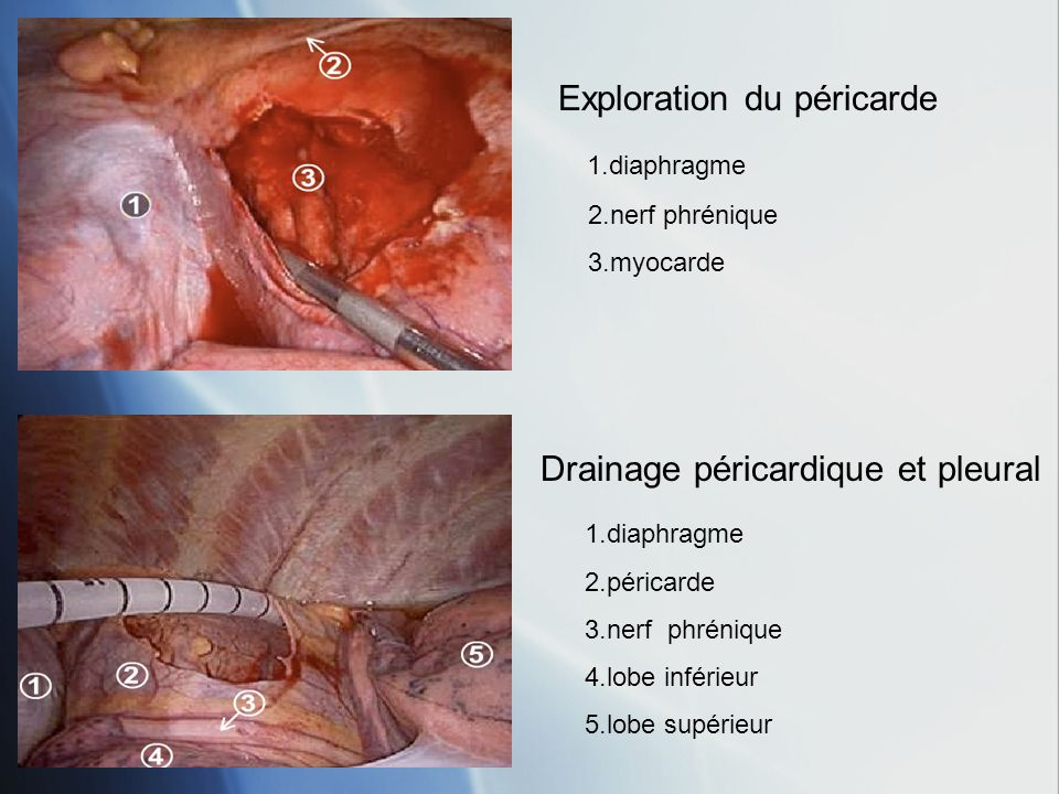 Exploration du péricarde 1.diaphragme