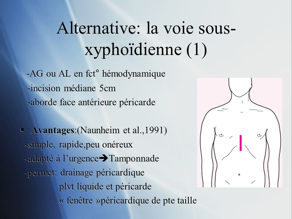 Alternative: la voie sous-xyphoïdienne (1)