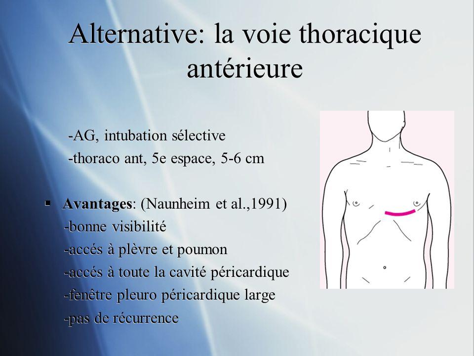 Alternative: la voie thoracique antérieure