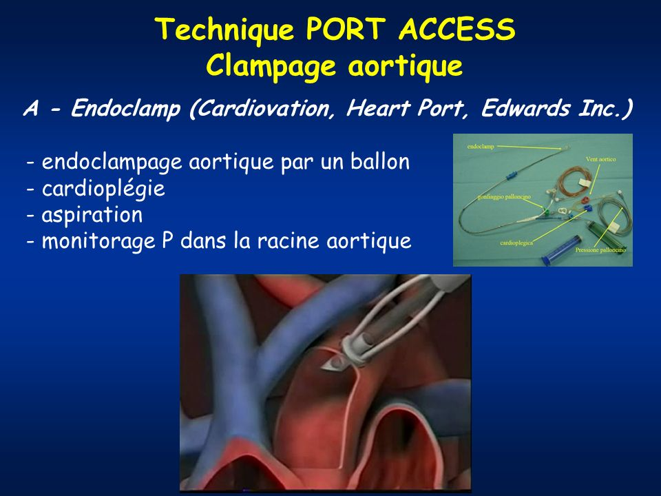 A - Endoclamp (Cardiovation, Heart Port, Edwards Inc.)