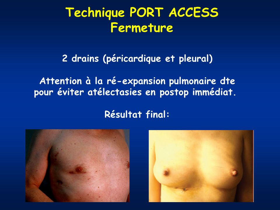 Technique PORT ACCESS Fermeture