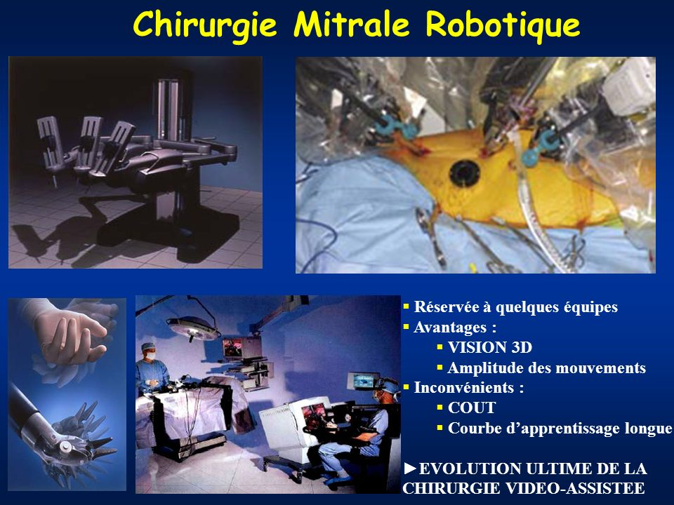 Chirurgie Mitrale Robotique