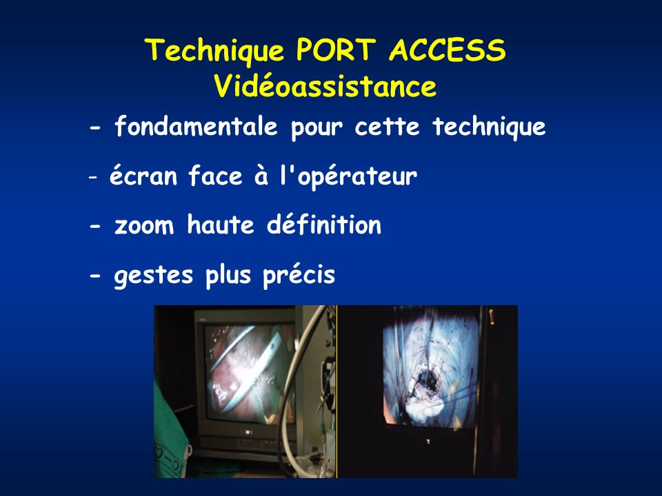 Technique PORT ACCESS Vidéoassistance