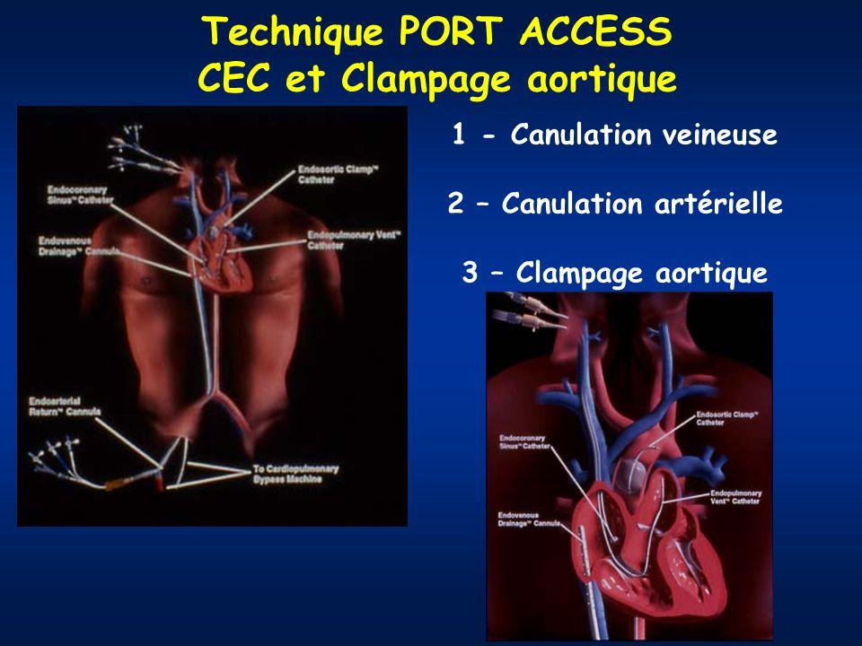 CEC et Clampage aortique 2 – Canulation artérielle