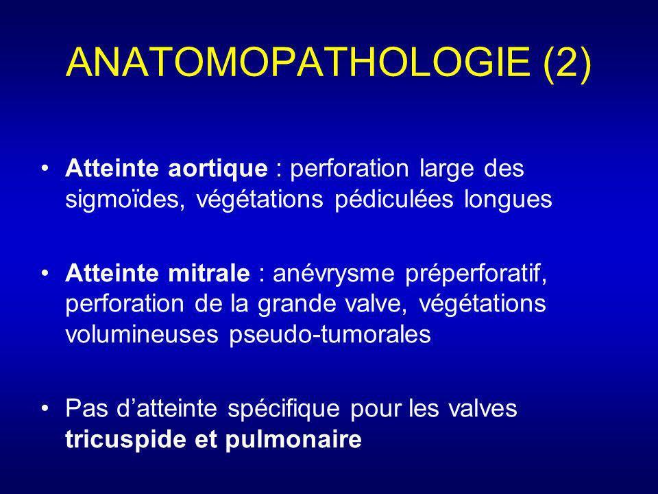 ANATOMOPATHOLOGIE (2) Atteinte aortique : perforation large des sigmoïdes, végétations pédiculées longues.