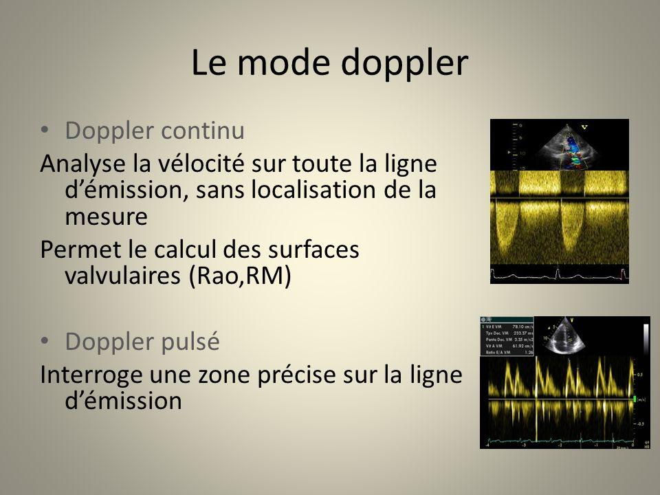Le mode doppler Doppler continu