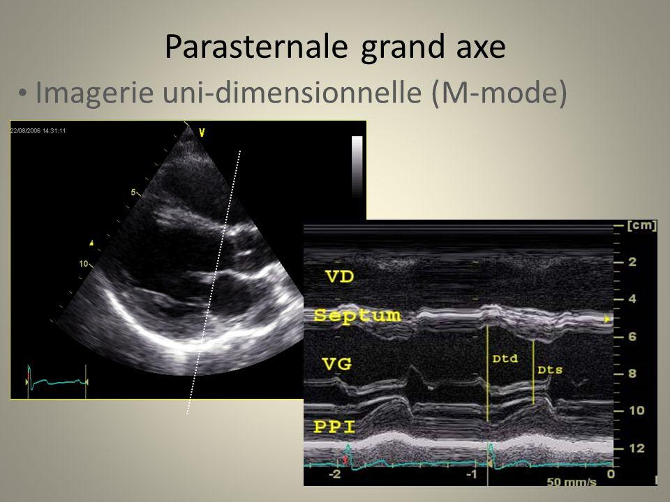 Parasternale grand axe