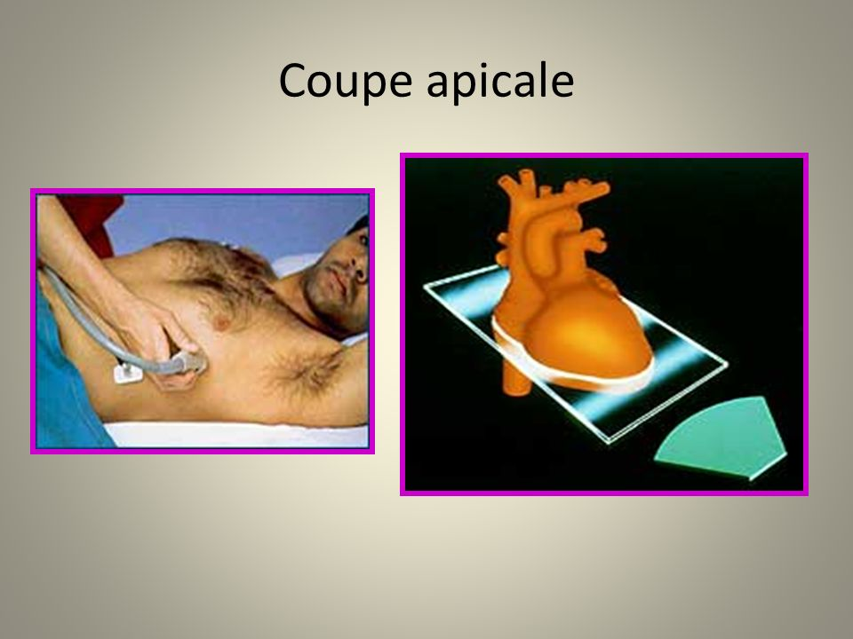 Coupe apicale