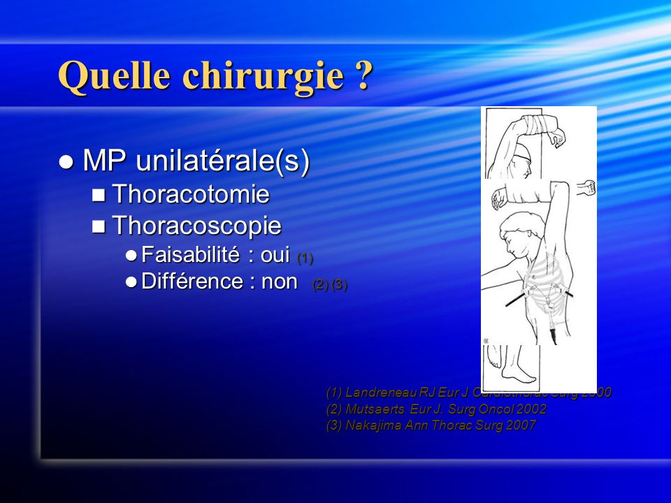 Quelle chirurgie MP unilatérale(s) Thoracotomie Thoracoscopie