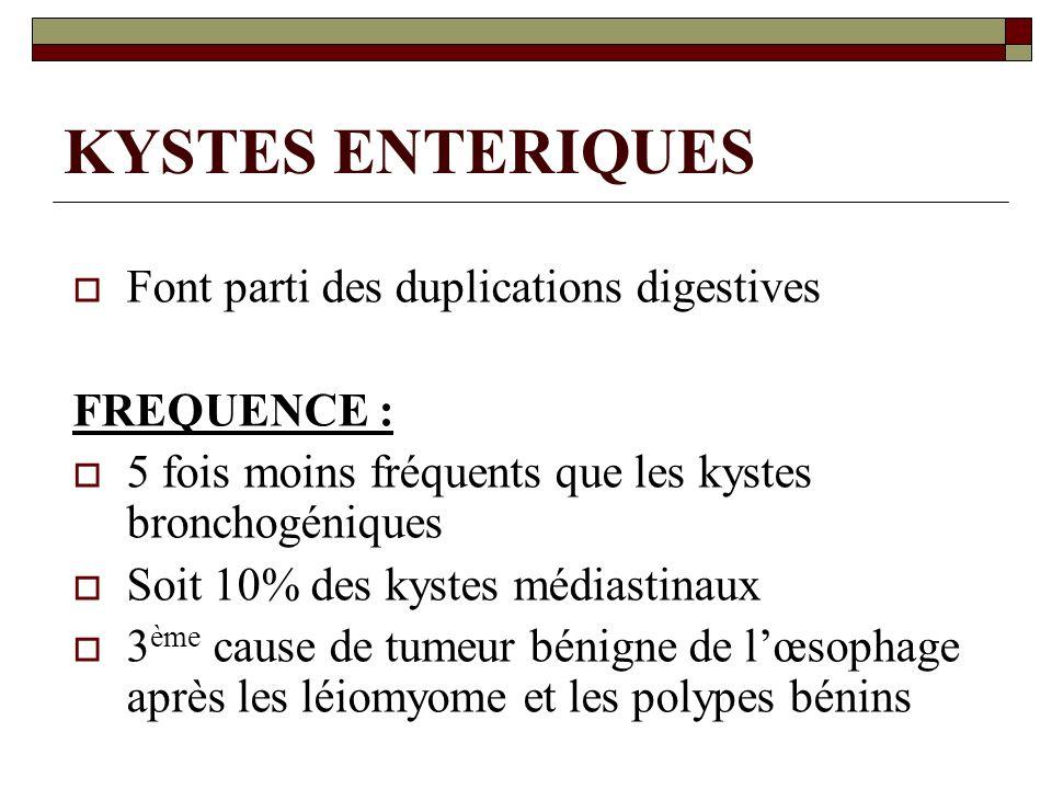 KYSTES ENTERIQUES Font parti des duplications digestives FREQUENCE :