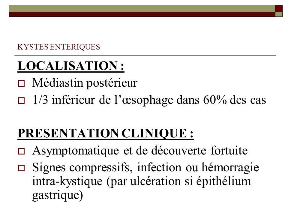 1/3 inférieur de l'œsophage dans 60% des cas PRESENTATION CLINIQUE :