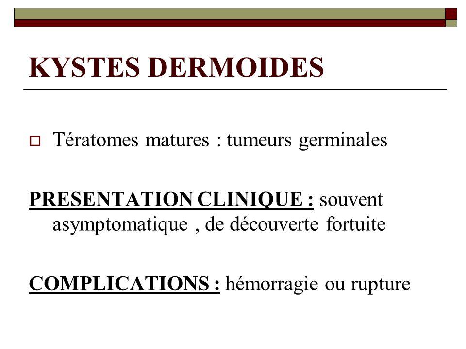 KYSTES DERMOIDES Tératomes matures : tumeurs germinales