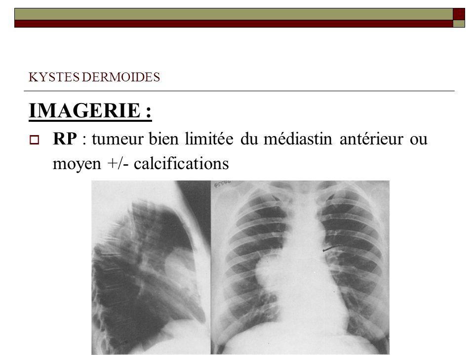 KYSTES DERMOIDES IMAGERIE : RP : tumeur bien limitée du médiastin antérieur ou moyen +/- calcifications.