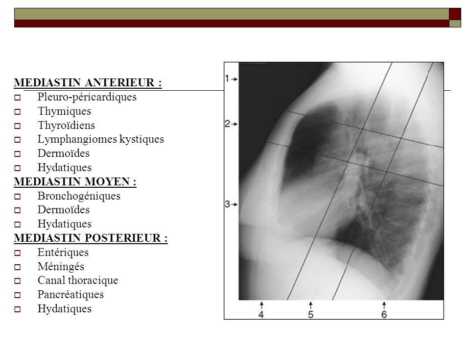 MEDIASTIN ANTERIEUR : Pleuro-péricardiques. Thymiques. Thyroïdiens. Lymphangiomes kystiques. Dermoïdes.