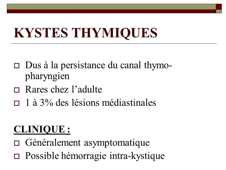 KYSTES THYMIQUES Dus à la persistance du canal thymo-pharyngien