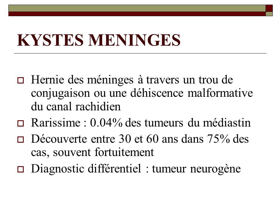 KYSTES MENINGES Hernie des méninges à travers un trou de conjugaison ou une déhiscence malformative du canal rachidien.