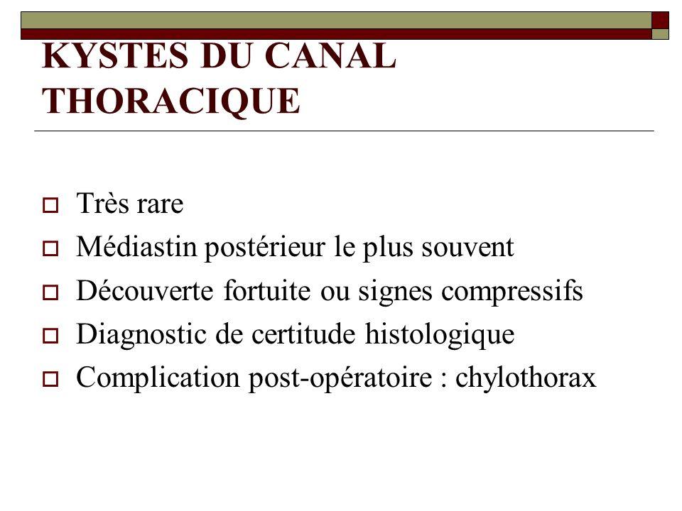 KYSTES DU CANAL THORACIQUE