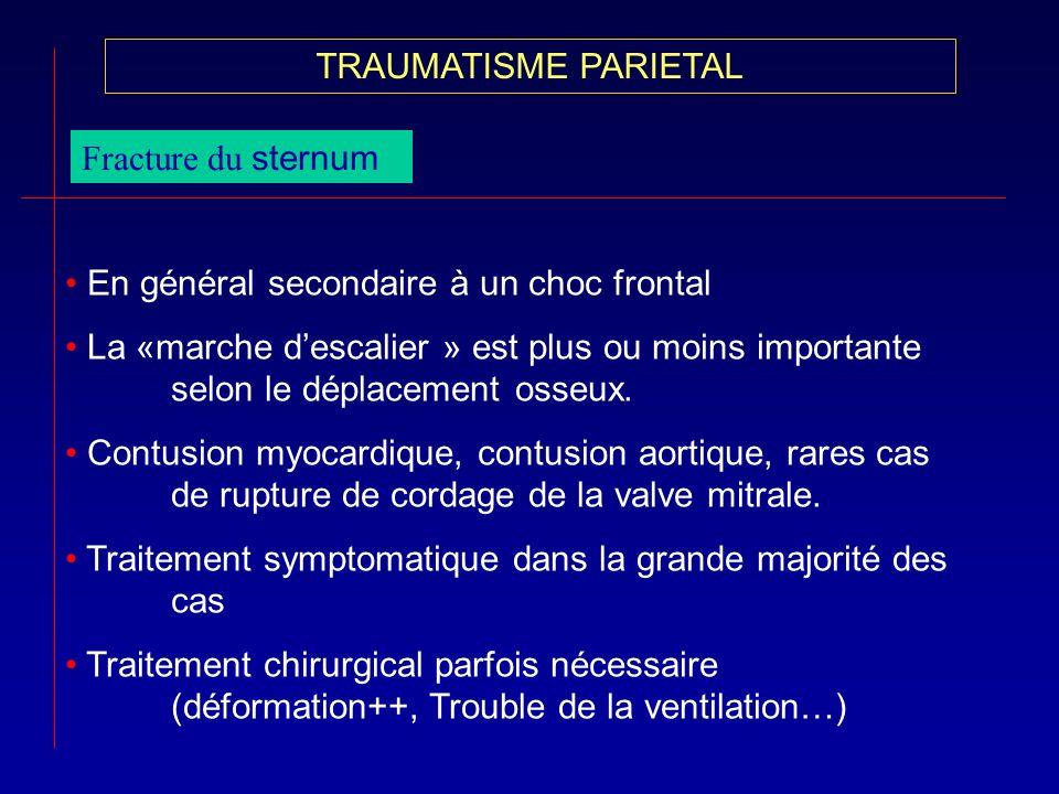 TRAUMATISME PARIETALFracture du sternum. En général secondaire à un choc frontal.