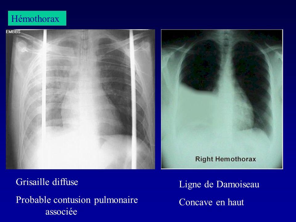 HémothoraxGrisaille diffuse.Probable contusion pulmonaire associée.