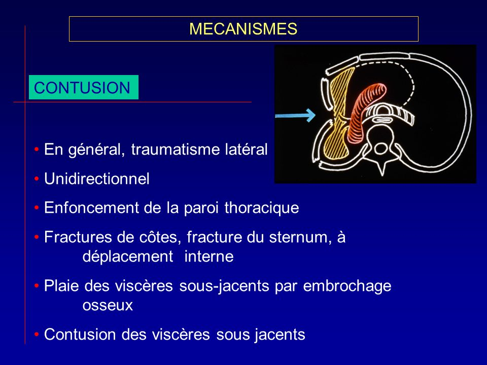 MECANISMESCONTUSION. En général, traumatisme latéral. Unidirectionnel. Enfoncement de la paroi thoracique.