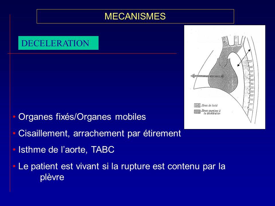 MECANISMESDECELERATION. Organes fixés/Organes mobiles. Cisaillement, arrachement par étirement. Isthme de l'aorte, TABC.
