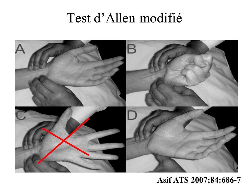 Test d'Allen modifié Asif ATS 2007;84:686-7