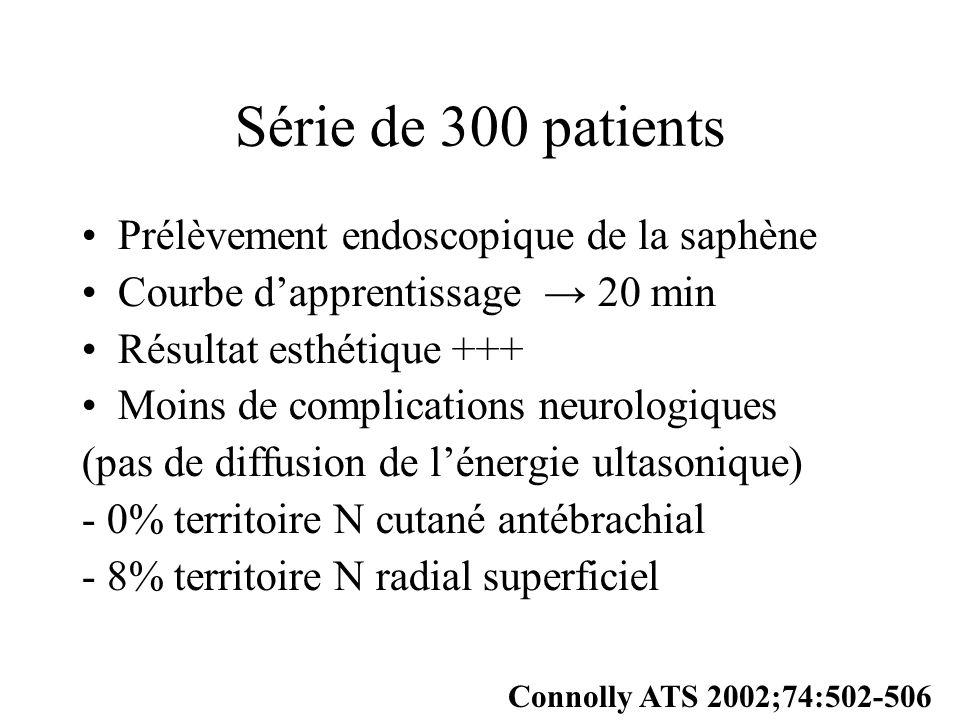Série de 300 patients Prélèvement endoscopique de la saphène