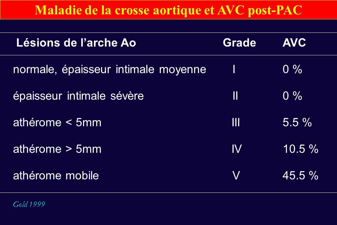 Maladie de la crosse aortique et AVC post-PAC
