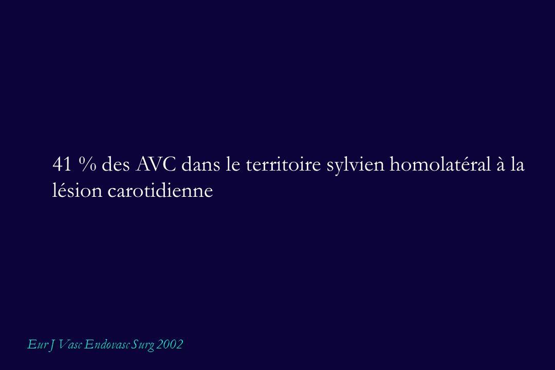 41 % des AVC dans le territoire sylvien homolatéral à la lésion carotidienne