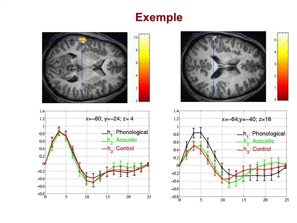 Exemple Ici un autre exemple dans un protocole sur l'écoute de stimuli phonologiques, acoustiques ou de contrôle.