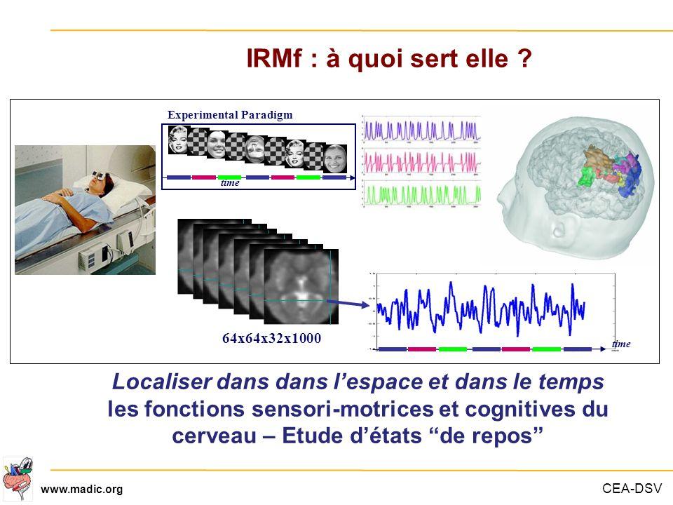 IRMf : à quoi sert elle Experimental Paradigm. time. Dire pourquoi c est important de modéliser l effet BOLD.