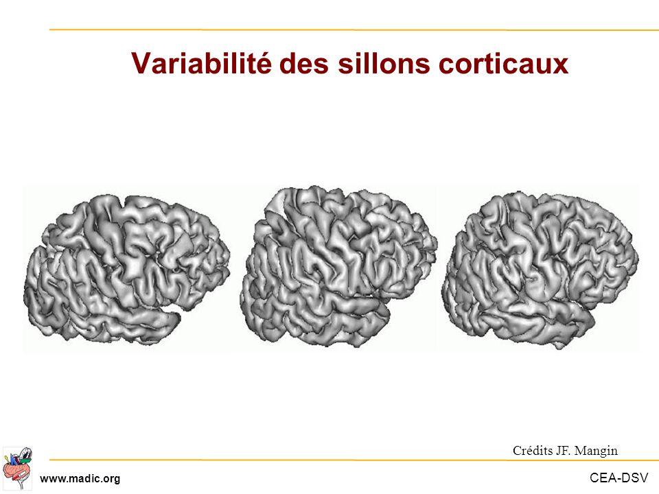 Variabilité des sillons corticaux