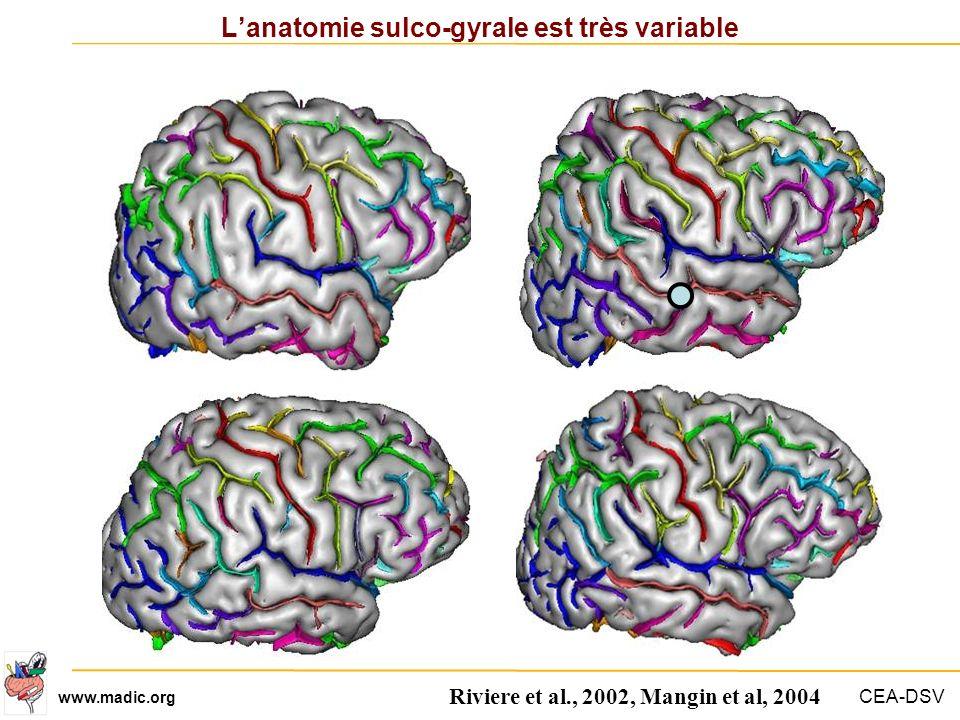 L'anatomie sulco-gyrale est très variable