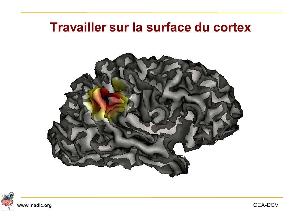 Travailler sur la surface du cortex