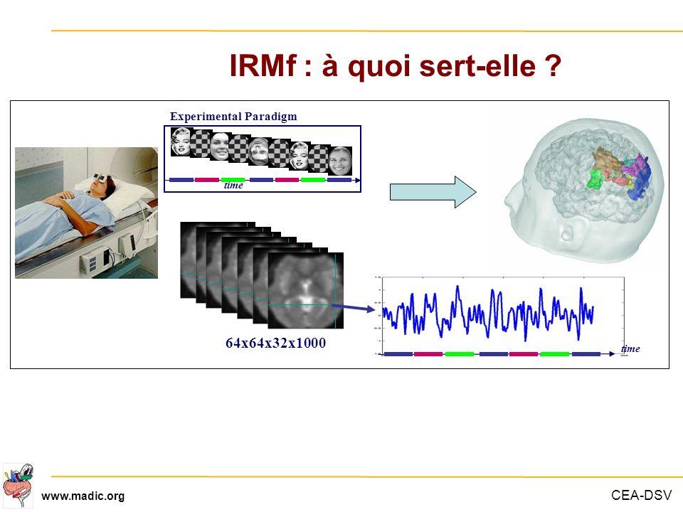 IRMf : à quoi sert-elle Experimental Paradigm. time. Dire pourquoi c est important de modéliser l effet BOLD.