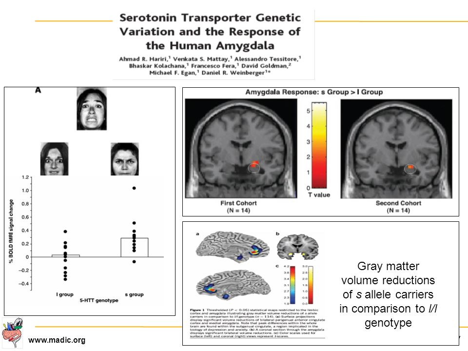 Gray matter volume reductions of s allele carriers in comparison to l/l genotype