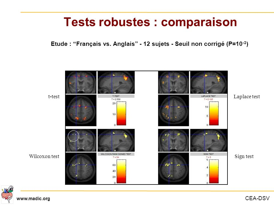 Tests robustes : comparaison