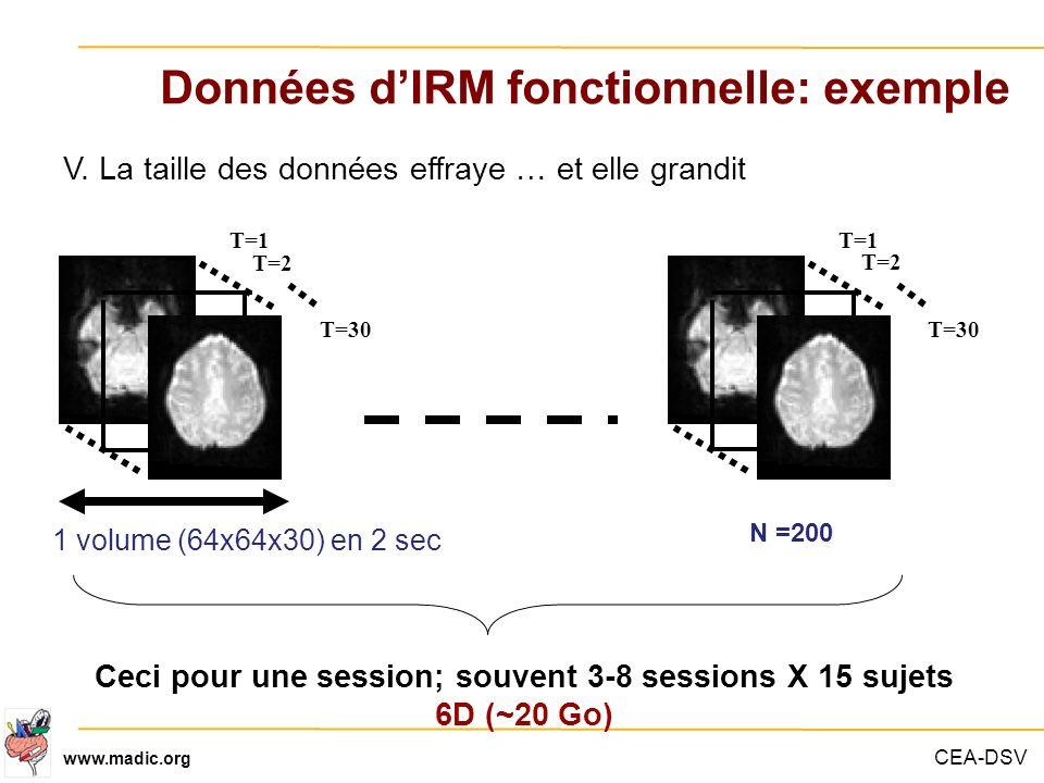 Données d'IRM fonctionnelle: exemple