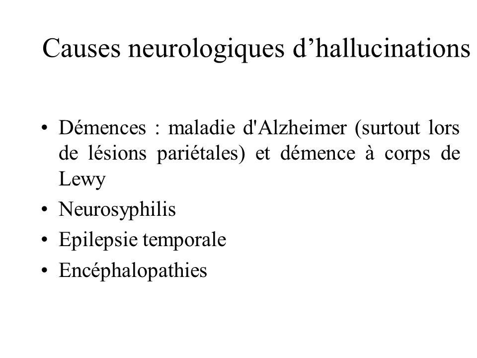 Causes neurologiques d'hallucinations
