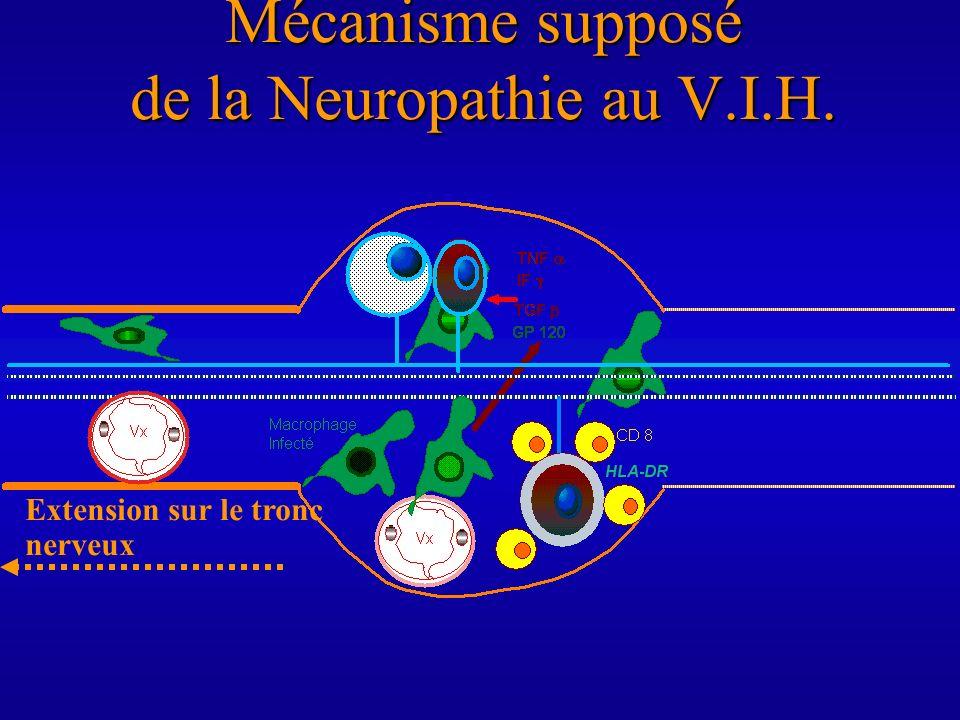 Mécanisme supposé de la Neuropathie au V.I.H.