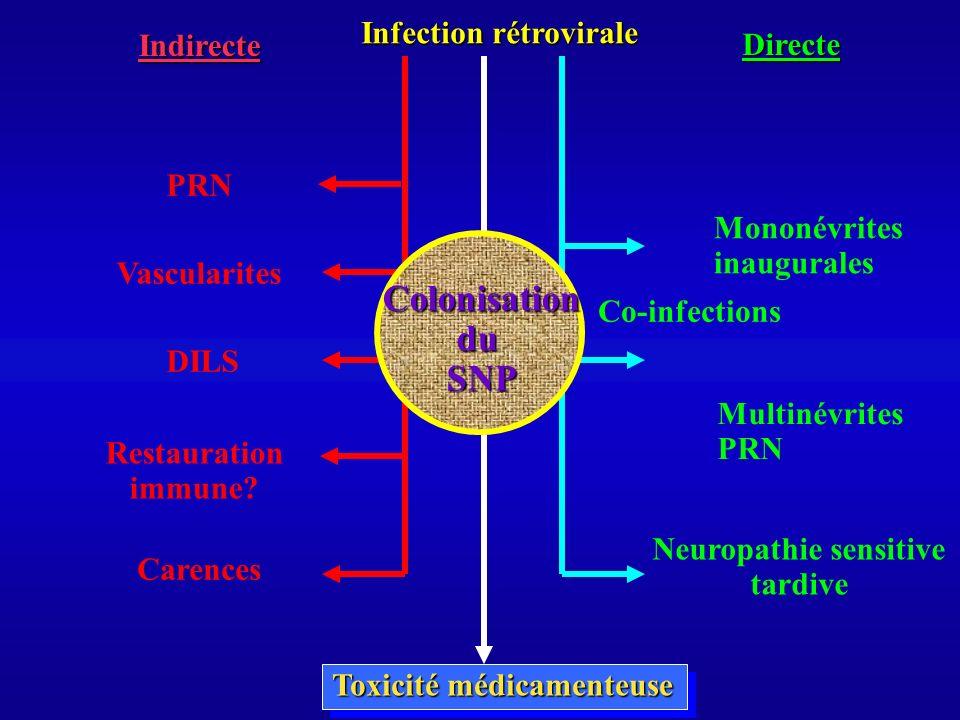 Neuropathie sensitive