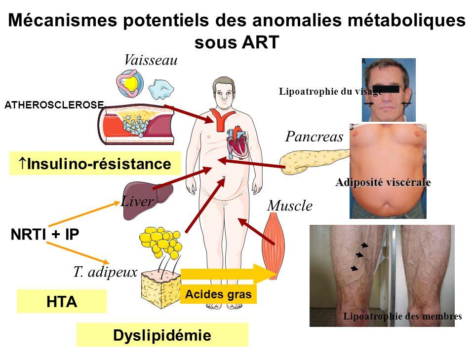 Mécanismes potentiels des anomalies métaboliques sous ART