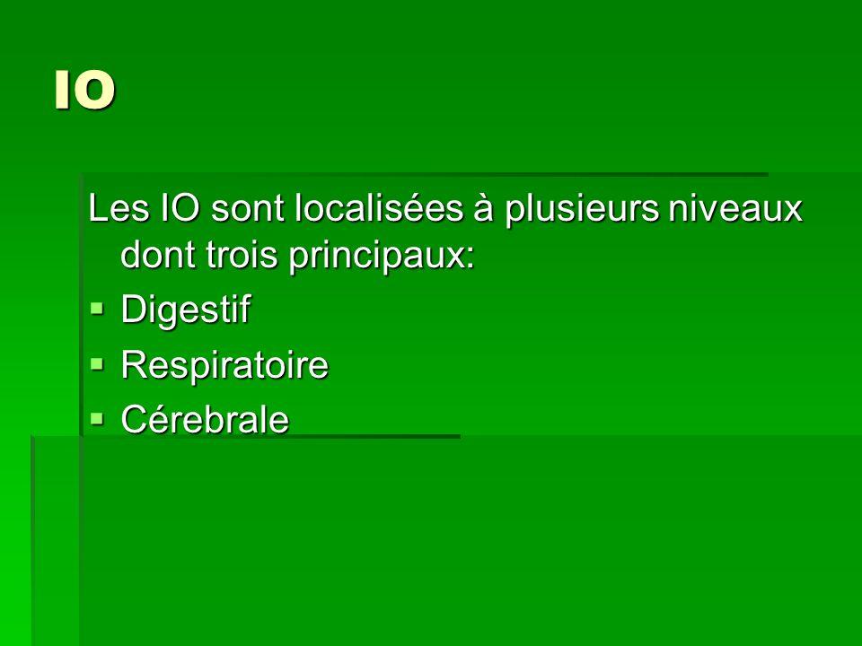 IO Les IO sont localisées à plusieurs niveaux dont trois principaux: