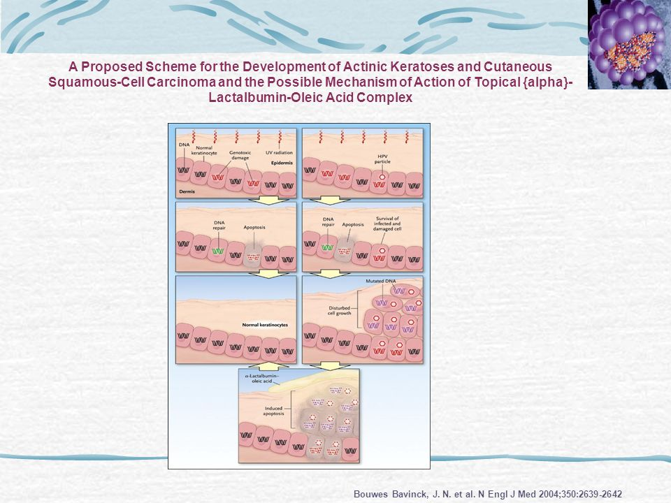 A Proposed Scheme for the Development of Actinic Keratoses and Cutaneous Squamous-Cell Carcinoma and the Possible Mechanism of Action of Topical {alpha}- Lactalbumin-Oleic Acid Complex
