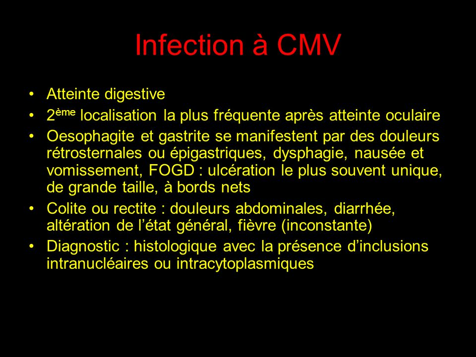 Infection à CMV Atteinte digestive