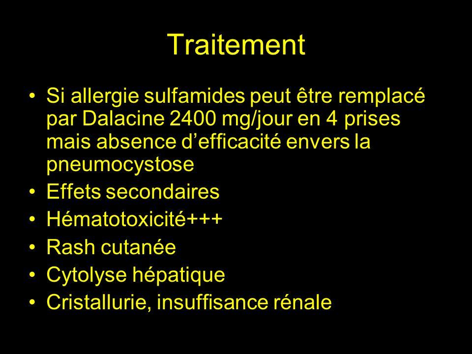 TraitementSi allergie sulfamides peut être remplacé par Dalacine 2400 mg/jour en 4 prises mais absence d'efficacité envers la pneumocystose.