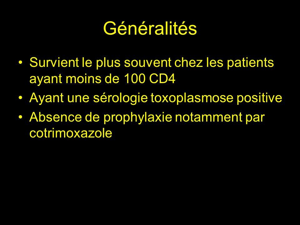 Généralités Survient le plus souvent chez les patients ayant moins de 100 CD4. Ayant une sérologie toxoplasmose positive.
