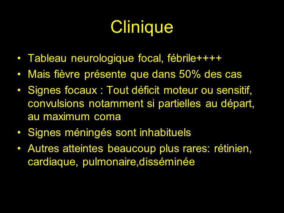 Clinique Tableau neurologique focal, fébrile++++